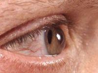 Gözlerini ovuşturanlar dikkat