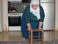 'Fil' hastası anne eve hapsoldu