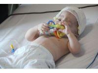 11 aylık bebeğe kafa şekil bozukluğu ameliyatı