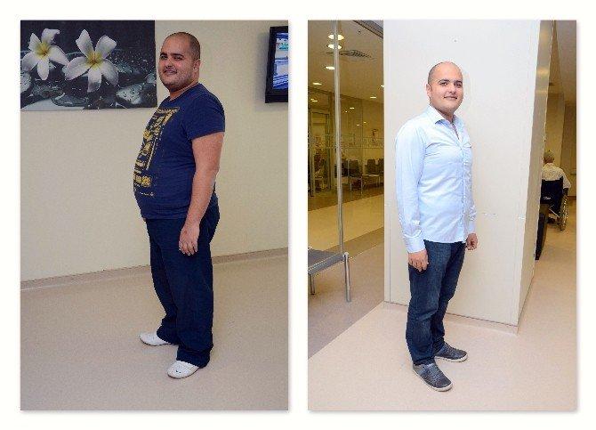 Obezite Cerrahisiyle Yeni 'Beden'lerine Kavuştular