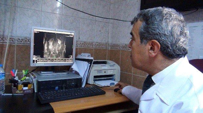 Meram Tıp Fakültesi Başarılı Bir Operasyona Daha İmza Attı
