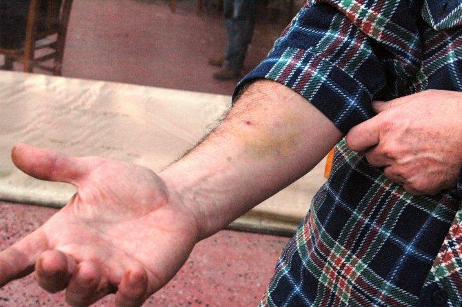 Saldırıya uğrayan köpeğini korumaya çalışırken yaralandı