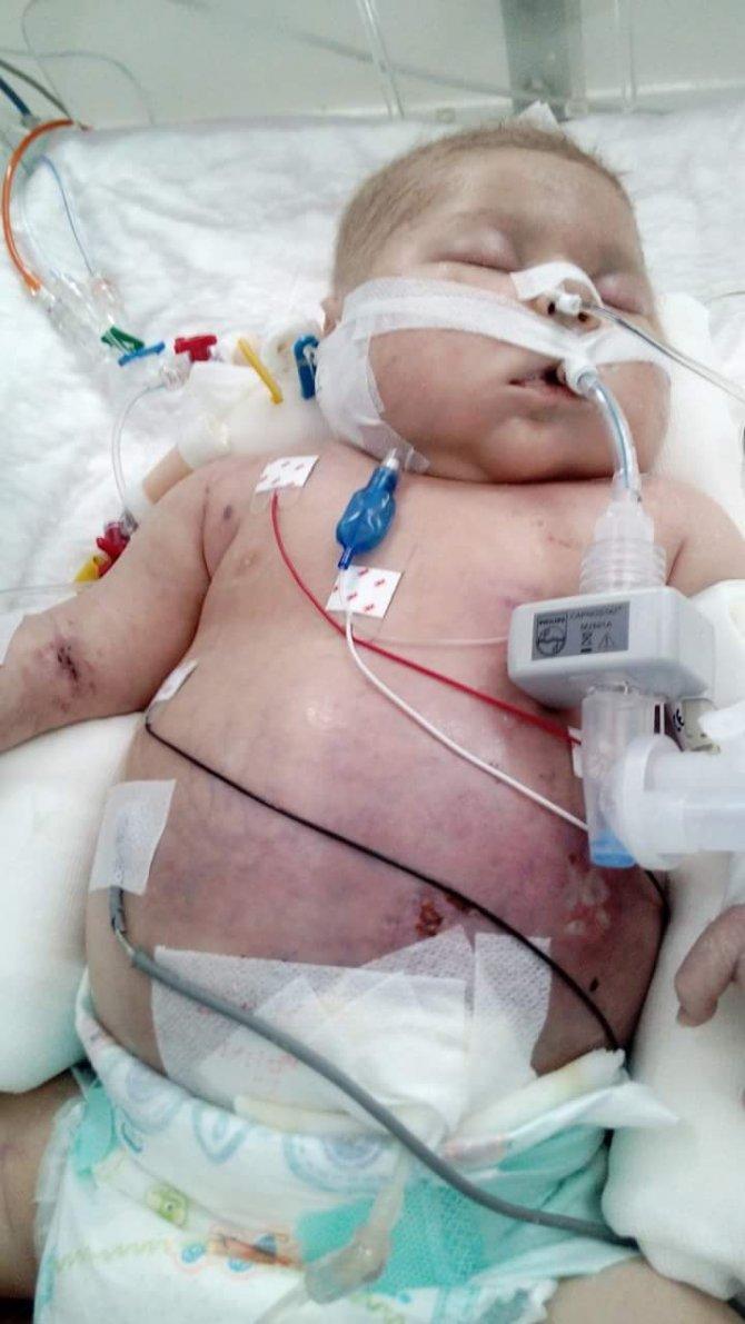 Hastanede yanlış kan verildiği için bebek öldü iddiası