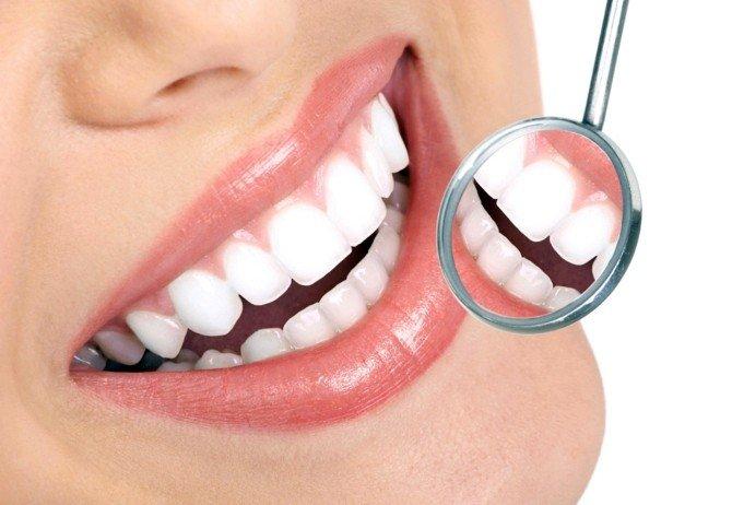 Diş Taşlarını Mutlaka Temizletin
