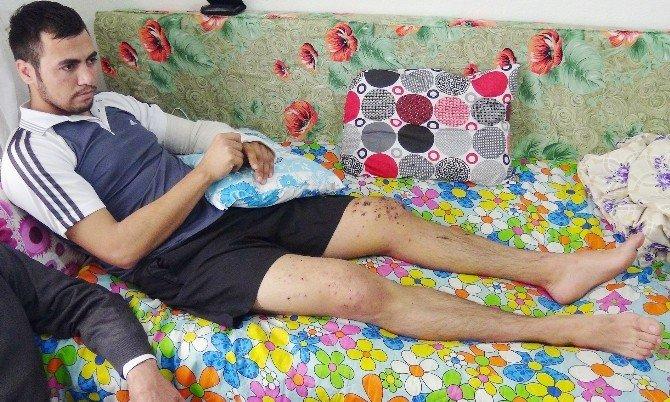 El Bombasıyla Yaralanan Asker Baba Evinde