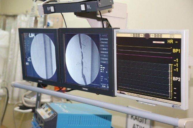 Diyaliz Hastasının Tıkalı Olan Bacağı Ameliyatsız Yöntemle Kesilmekten Kurtuldu