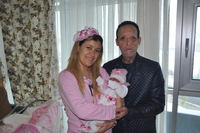 Yüz Nakli Olan Recep Sert'in Babalık Sevinci
