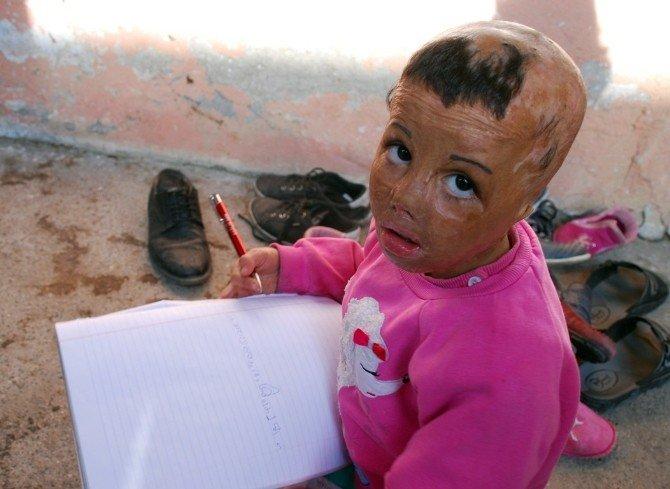 Mülteci Çocuğun Dramı