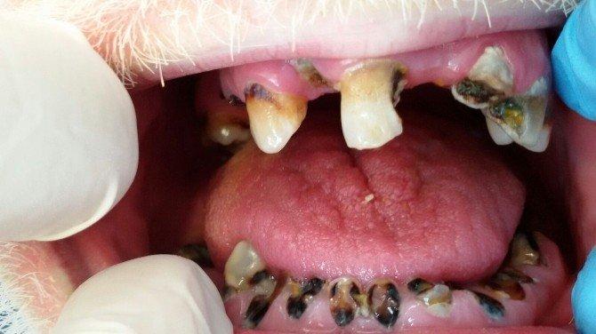 Dişleri Tamamen Çürüyen Hastaya Yeni Dişler Yapıldı