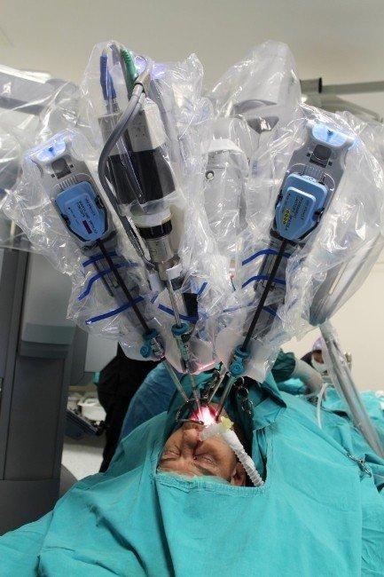 Robot Cerrahi İle Ağız İçi Kanser Ameliyatı
