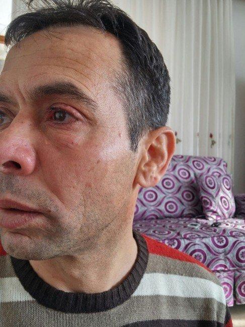 Trabzonspor Futbol Okulu Antrenörüne Evinde Asitli Saldırı