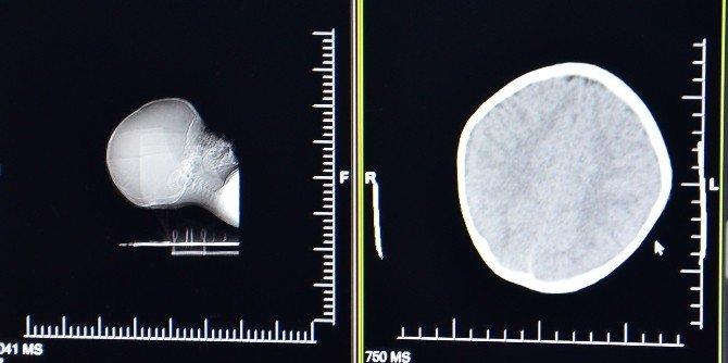 15 Aylık Bebekte Darp Şüphesi