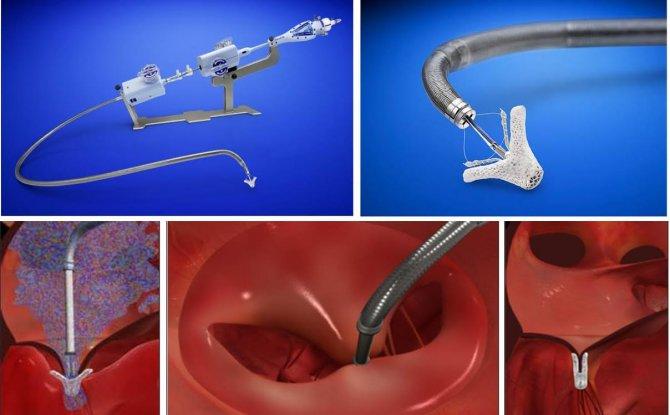 Açık ameliyatı kaldıramayan kalp hastalarına 'mitraclip' ile şifa