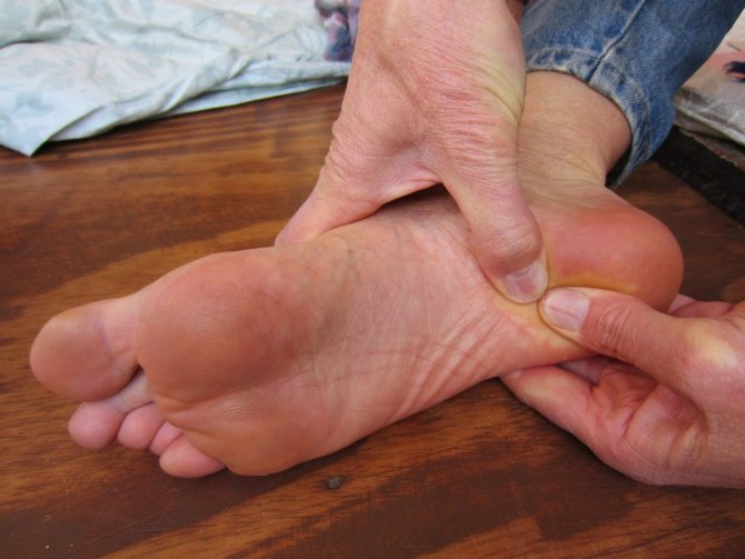 Kötü ayakkabılar topuk dikeni sebebi
