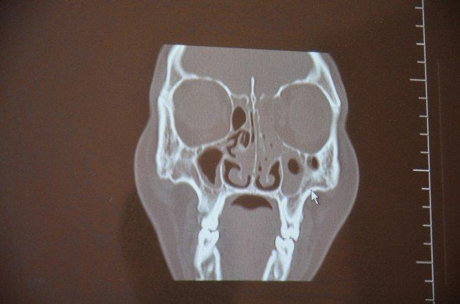 Şanlıurfa'da İlk Defa Endoskopik Beyin Tümörü Operasyonu