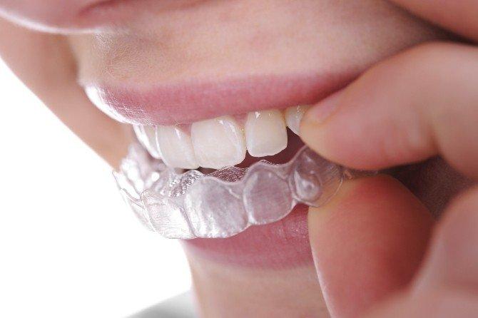 Şeffaf Plaklar Gülüşleri Değiştiriyor