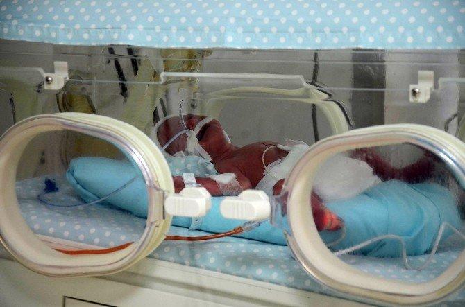 Beşiz Bebekler Solunum Cihazından Kurtuldu
