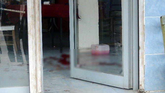 Kavgada Tüfekle Yaralanan Kişinin Hayati Tehlikesi Sürüyor