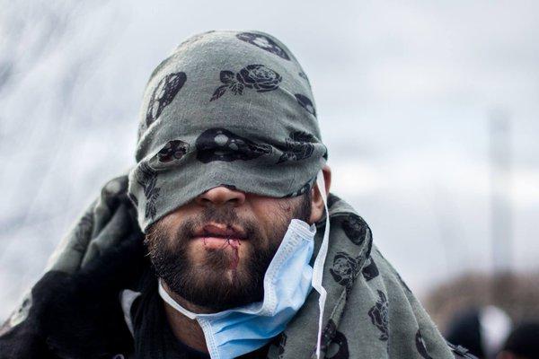 Fransa'da göçmenler, olaylı yıkımı dudaklarını dikerek protesto etti