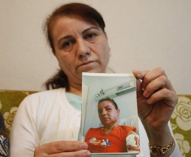 Kocasının Kızgın Yağ Dökerek Yaktığı Kadının Hayata Yeniden Dönüş Hikayesi