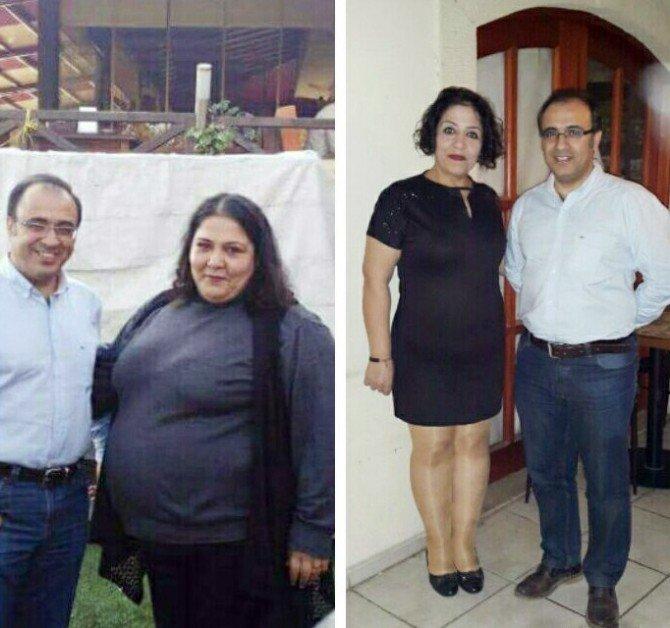 Ölümü Düşünen Anne 1 Yılda 84 Kilo Verdi
