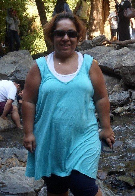 Obez Değil Lipödem Hastası Olduğunu Öğrendi