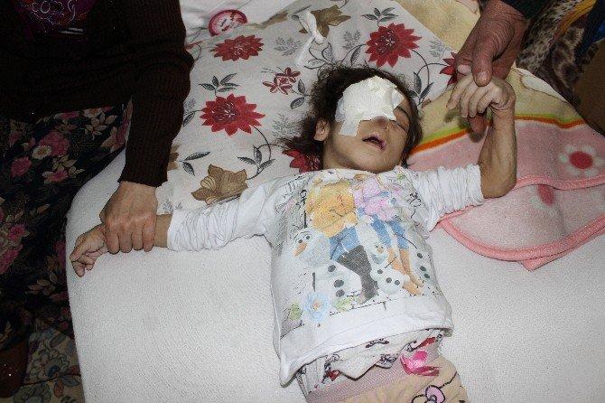 Acı Hissetmediği İçin Gözünü Çıkarıp Burnunu Parçalayan Minik Kız Öldü