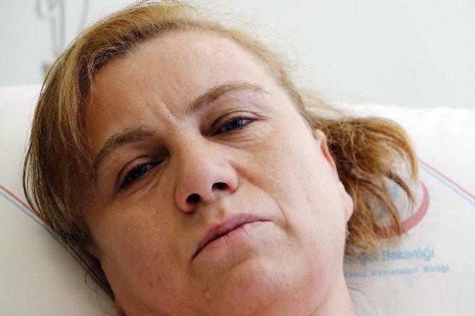Kocasının Kızgın Yağ Dökerek Yaktığı Kadının Hayata Yeniden Dönüş Hikayesine Saray Desteği