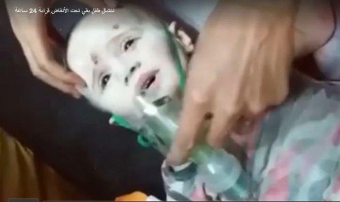 Rejim güçlerinin bombaladığı Halep'te 3 yaşındaki çocuk enkazdan sağ kurtarıldı