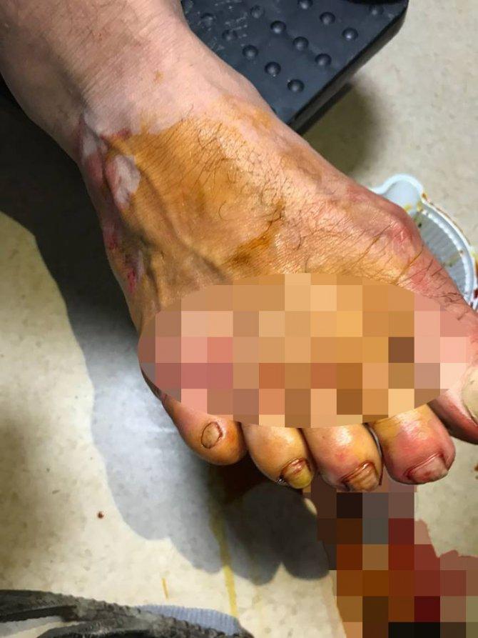 Ayağına saplanan tırmıkla hastaneye geldi