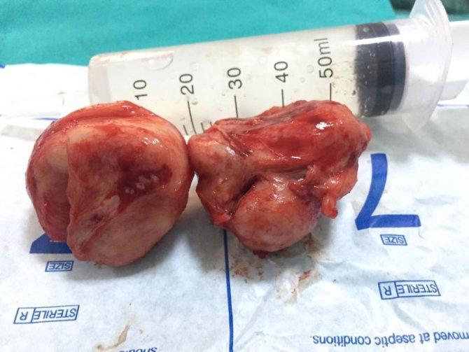 Ameliyatla 200 gramlık prostatı aldılar
